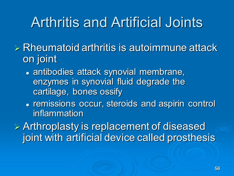 Arthritis and Artificial Joints