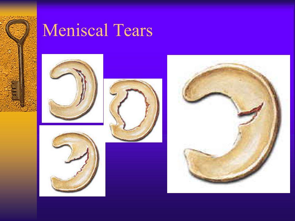 Meniscal Tears