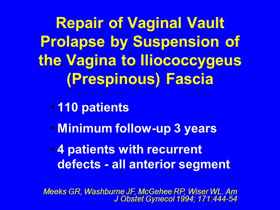 Repair of Vaginal Vault Prolapse by Suspension of the Vagina to Iliococcygeus (Prespinous) Fascia