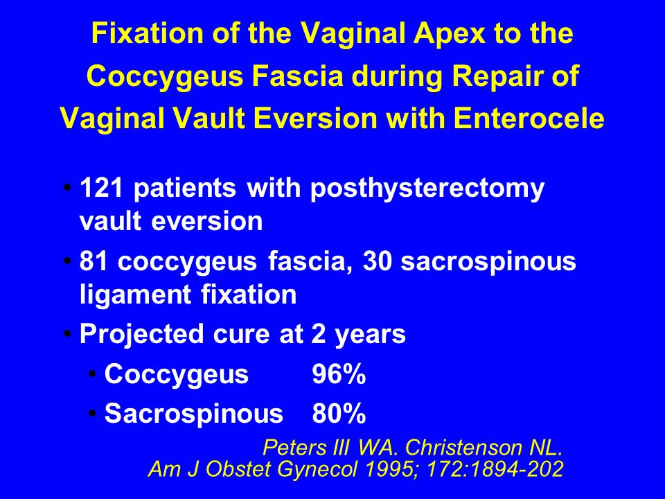 Fixation of the Vaginal Apex to the Coccygeus Fascia during Repair of Vaginal Vault Eversion with Enterocele