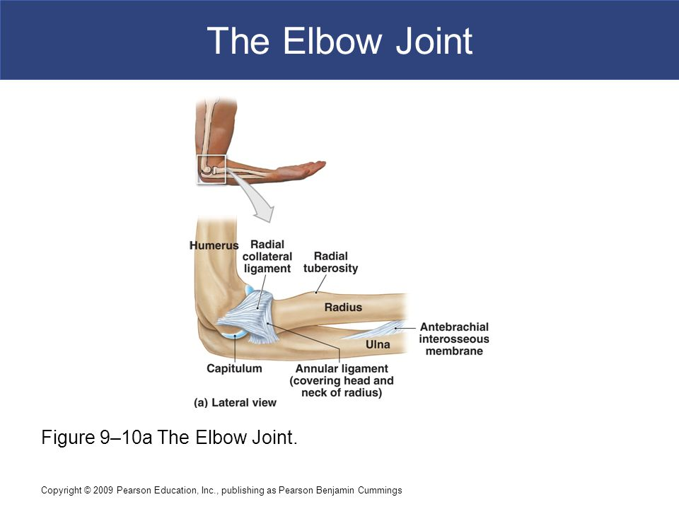 The Elbow Joint Figure 9–10a The Elbow Joint.