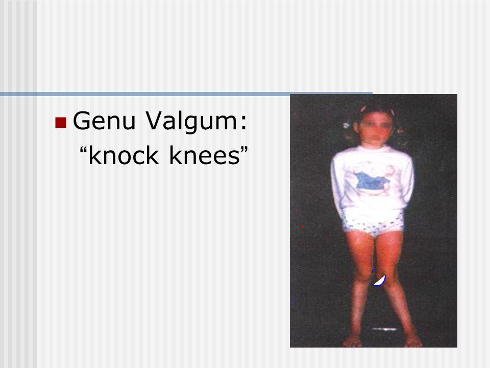Genu Valgum: knock knees