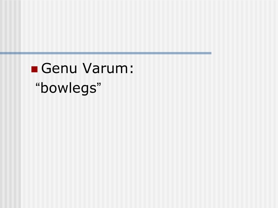 Genu Varum: bowlegs
