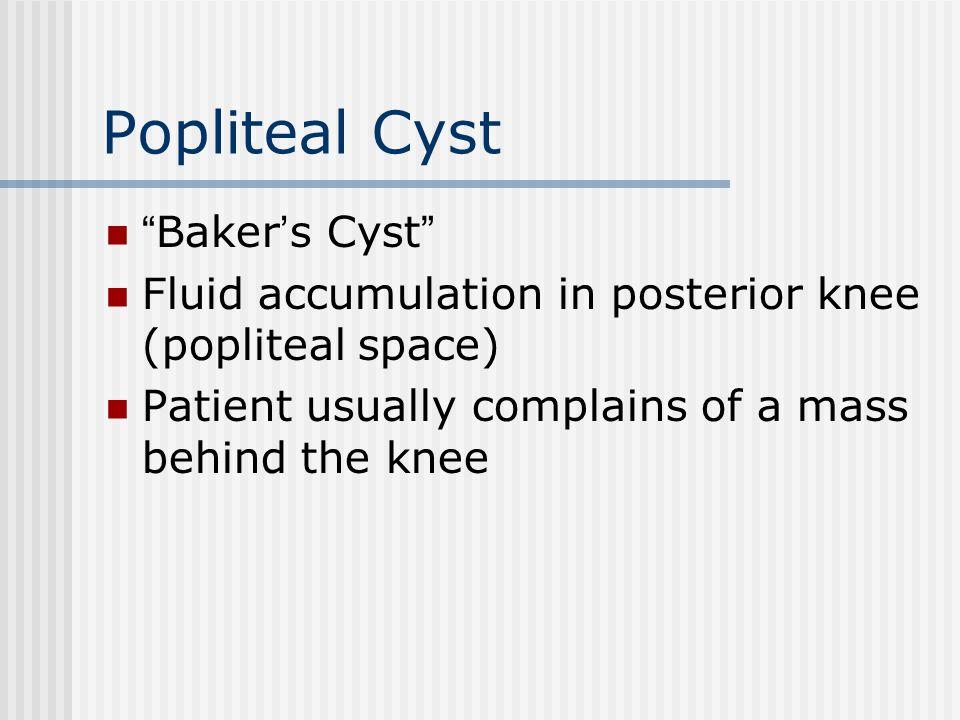Popliteal Cyst Baker's Cyst