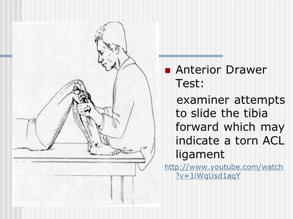 Anterior Drawer Test: examiner attempts to slide the tibia forward which may indicate a torn ACL ligament.