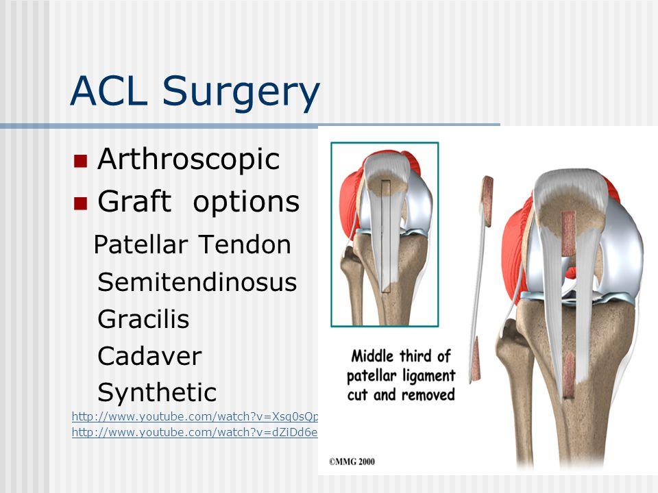 ACL Surgery Arthroscopic Graft options Patellar Tendon Semitendinosus