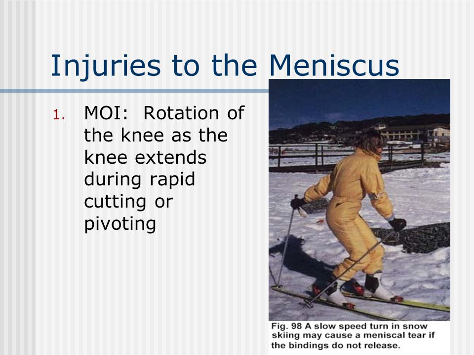 Injuries to the Meniscus