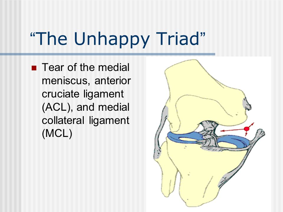 The Unhappy Triad Tear of the medial meniscus, anterior cruciate ligament (ACL), and medial collateral ligament (MCL)