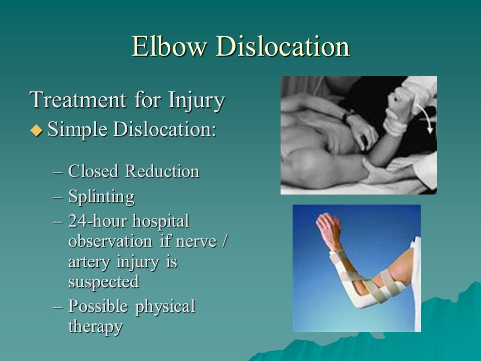 Elbow Dislocation Treatment for Injury Simple Dislocation: