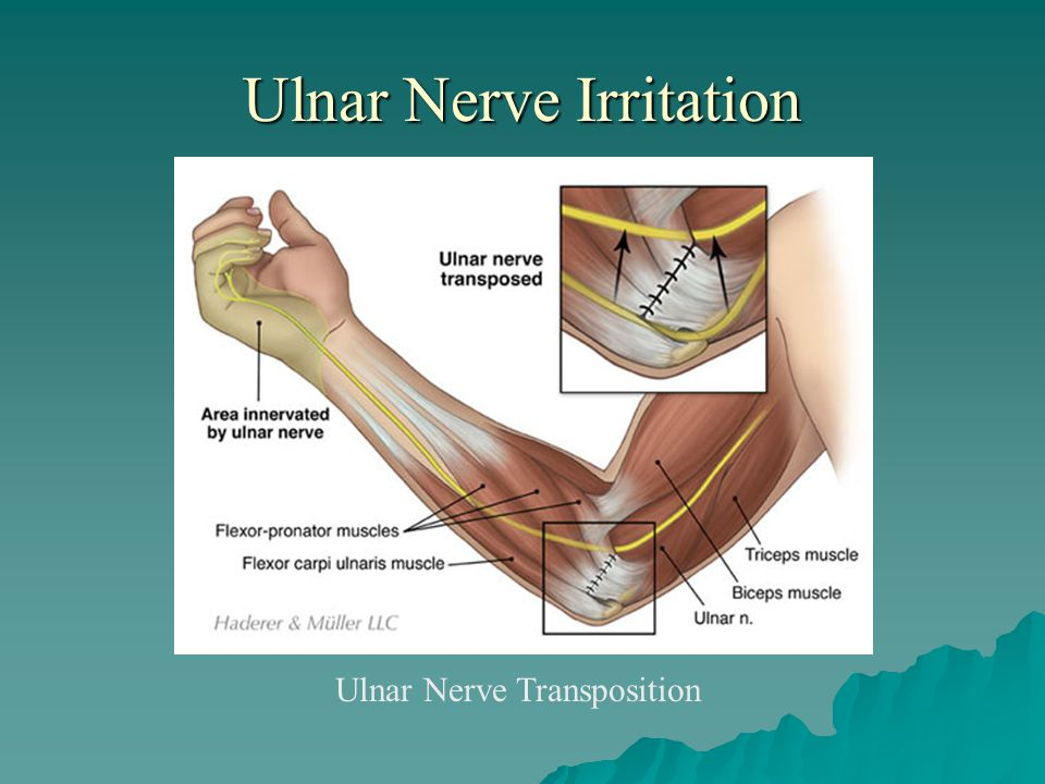 Ulnar Nerve Irritation