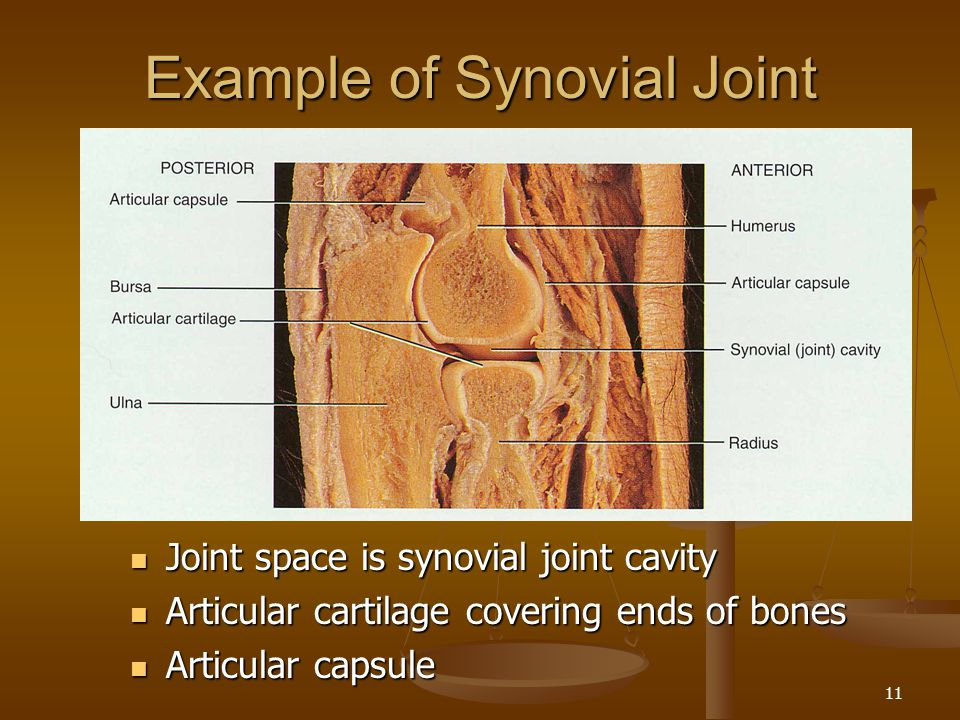 Example of Synovial Joint