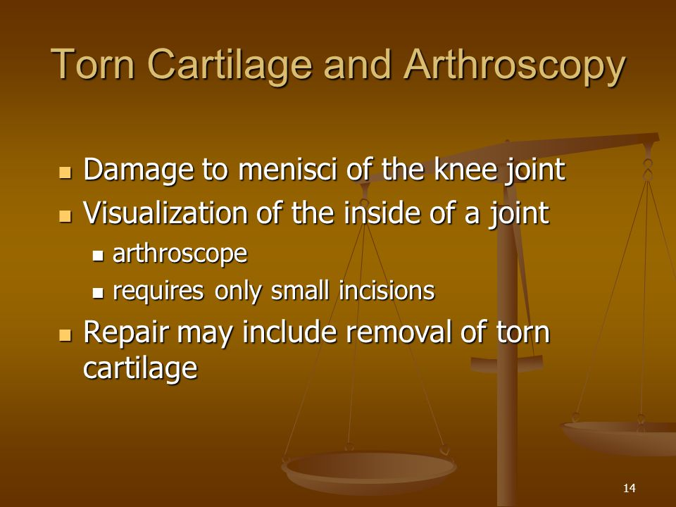Torn Cartilage and Arthroscopy