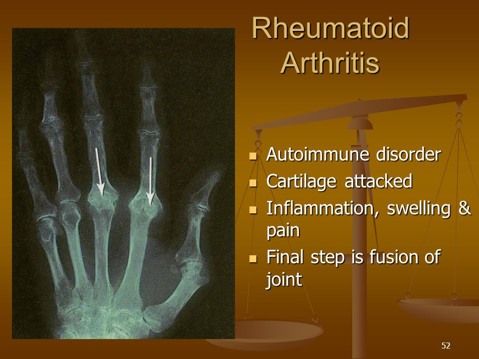 Rheumatoid Arthritis Autoimmune disorder Cartilage attacked
