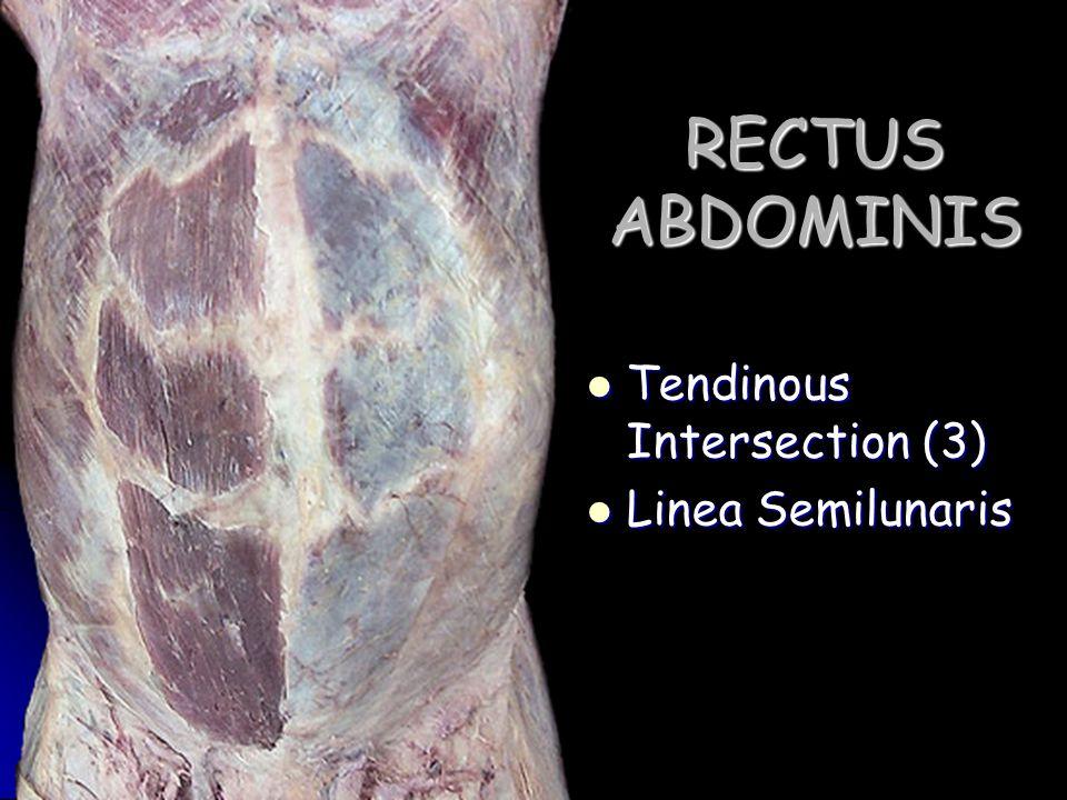 RECTUS ABDOMINIS Tendinous Intersection (3) Linea Semilunaris