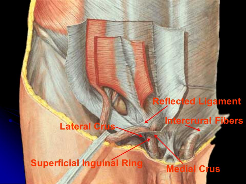 Superficial Inguinal Ring Crus