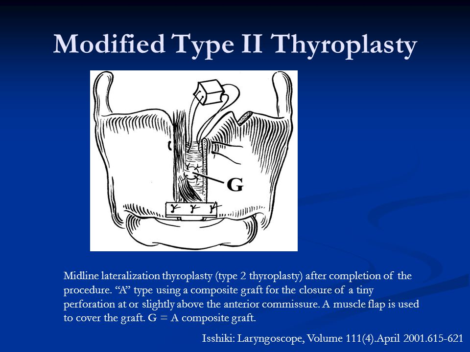 Modified Type II Thyroplasty