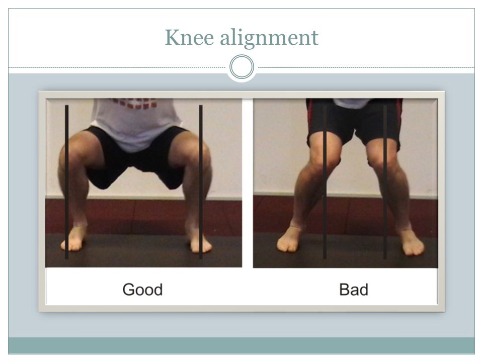 Knee alignment Note on the good side – knees over the middle toe region (not fallen inward) , equal weight on both sides.