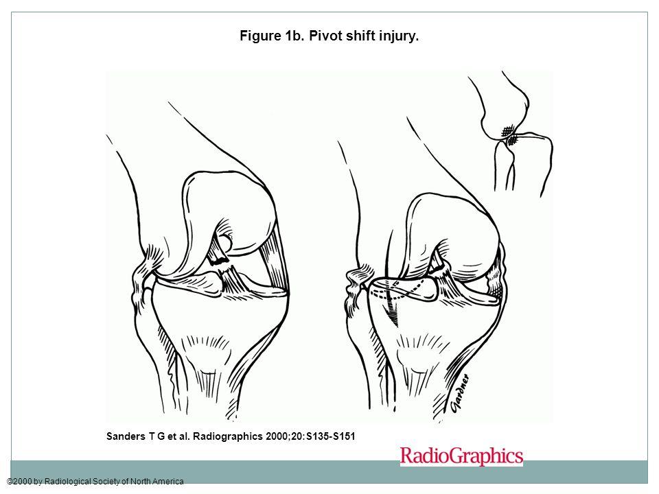 Figure 1b. Pivot shift injury.