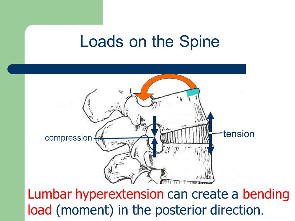 Loads on the Spine compression. tension.