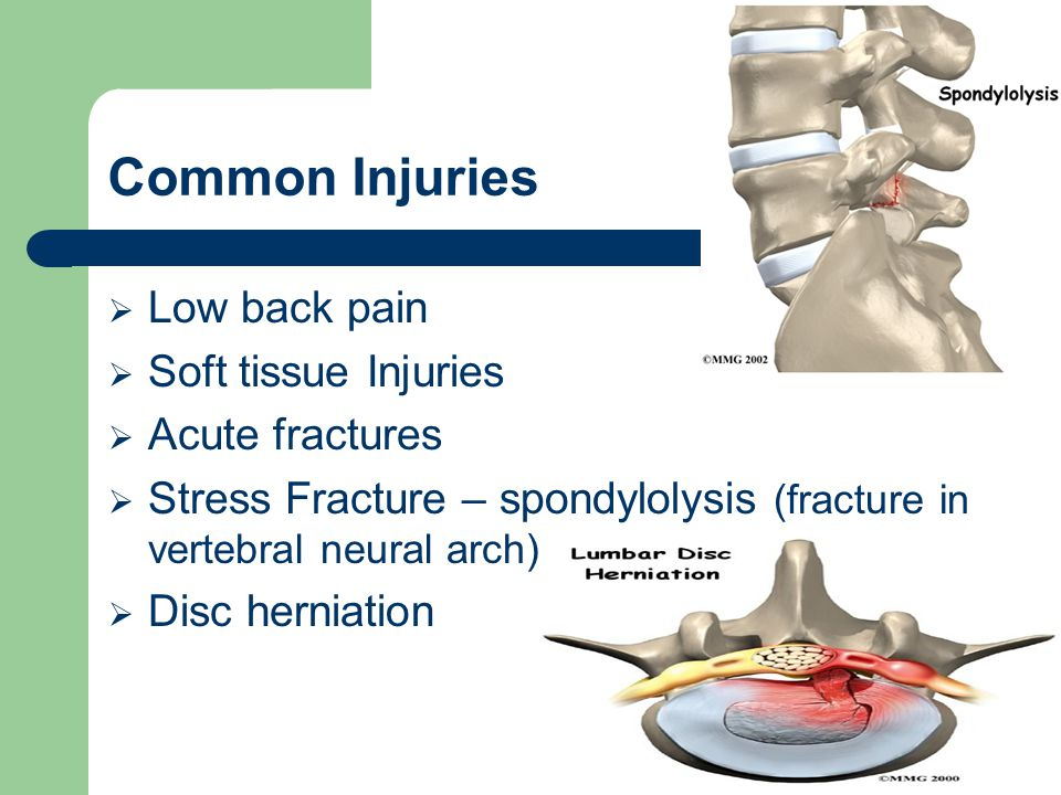Common Injuries Low back pain Soft tissue Injuries Acute fractures