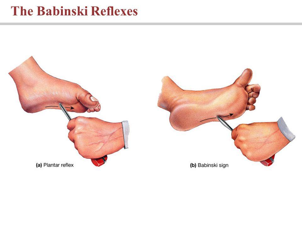 The Babinski Reflexes