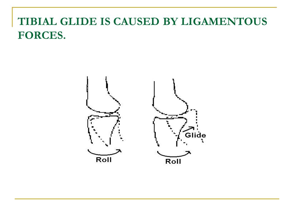 TIBIAL GLIDE IS CAUSED BY LIGAMENTOUS FORCES.