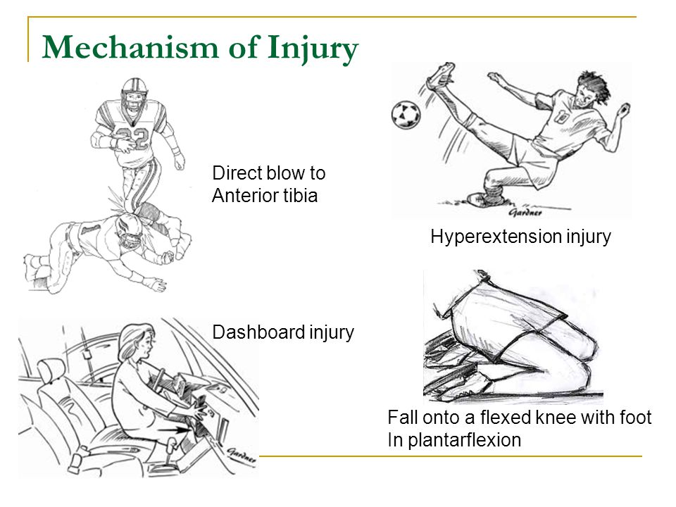 Mechanism of Injury Direct blow to Anterior tibia
