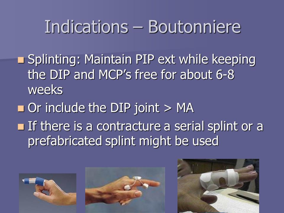 Splinting For The Fingers Ppt Video Online Download