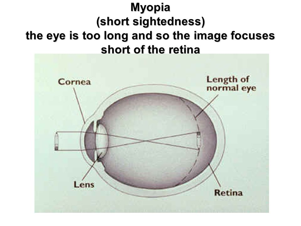 Myopia (short sightedness) the eye is too long and so the image focuses short of the retina
