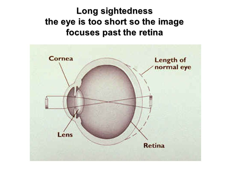 Long sightedness the eye is too short so the image focuses past the retina