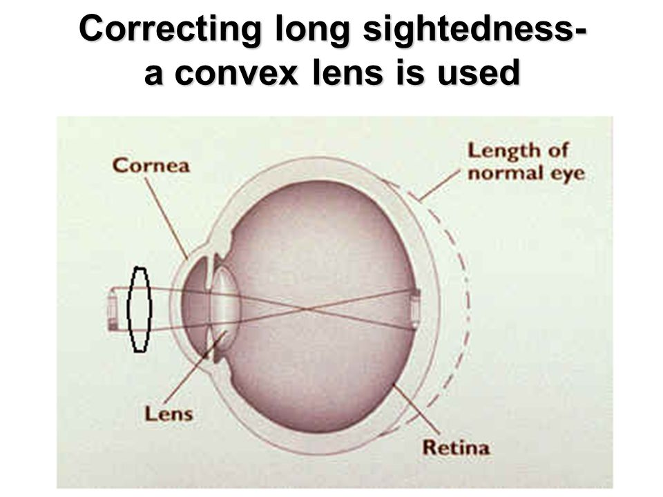 Correcting long sightedness- a convex lens is used
