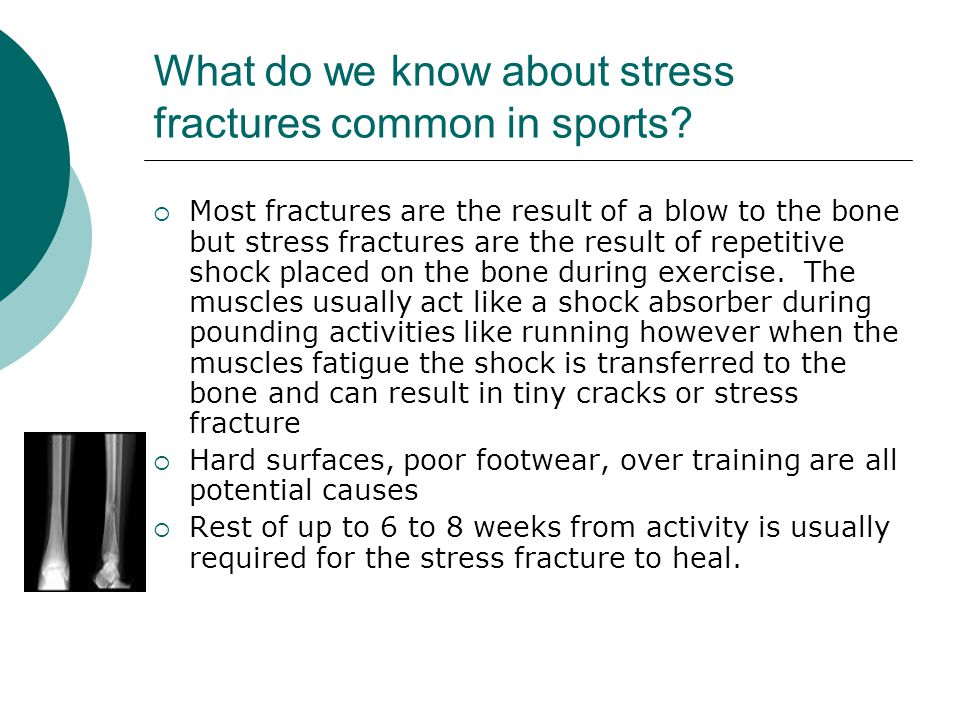 What do we know about stress fractures common in sports