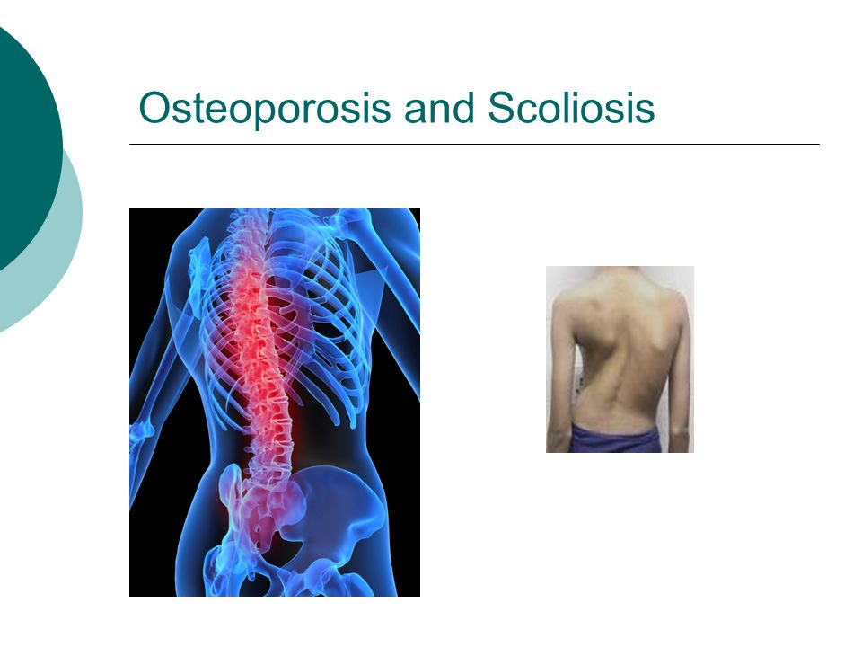 Osteoporosis and Scoliosis
