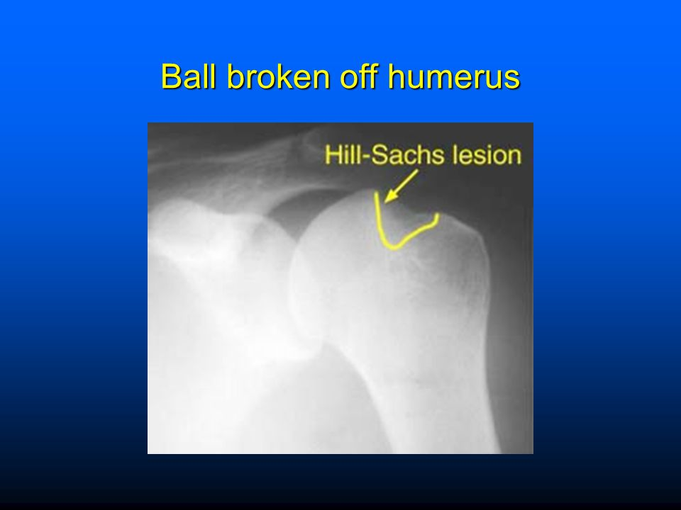 Ball broken off humerus