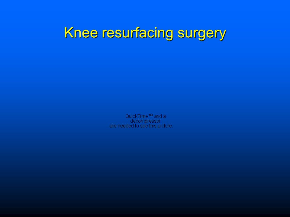 Knee resurfacing surgery
