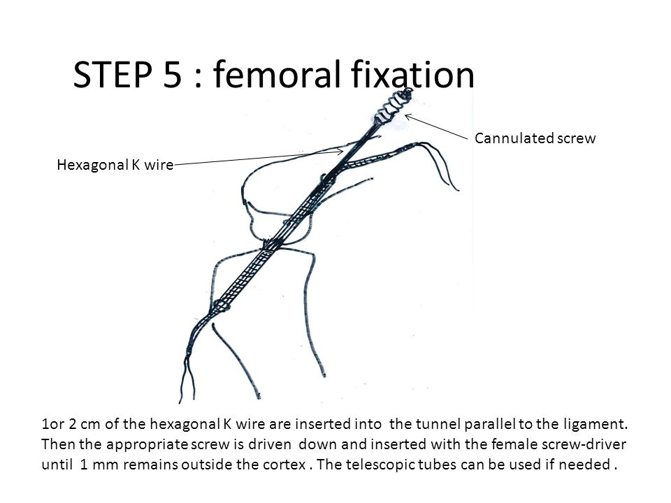 STEP 5 : femoral fixation