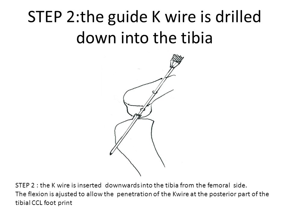 STEP 2:the guide K wire is drilled down into the tibia