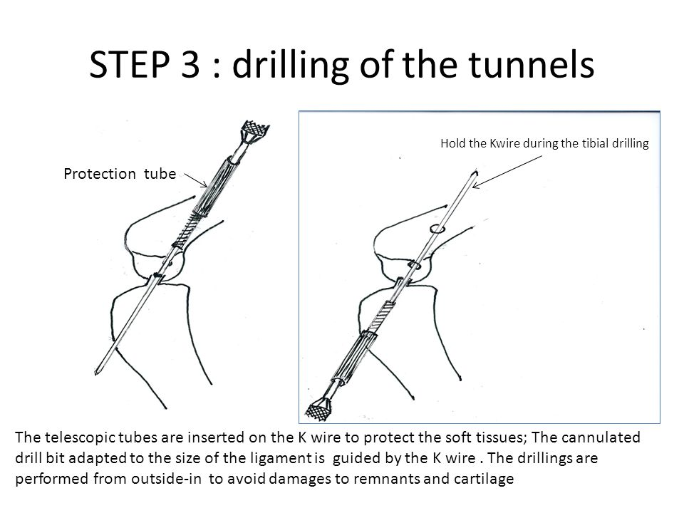 STEP 3 : drilling of the tunnels