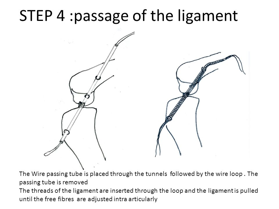 STEP 4 :passage of the ligament