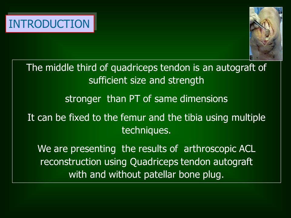 INTRODUCTION The middle third of quadriceps tendon is an autograft of sufficient size and strength.