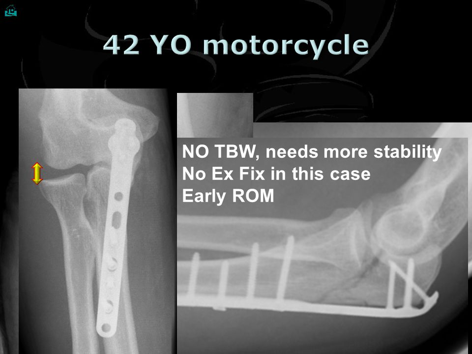 42 YO motorcycle NO TBW, needs more stability No Ex Fix in this case