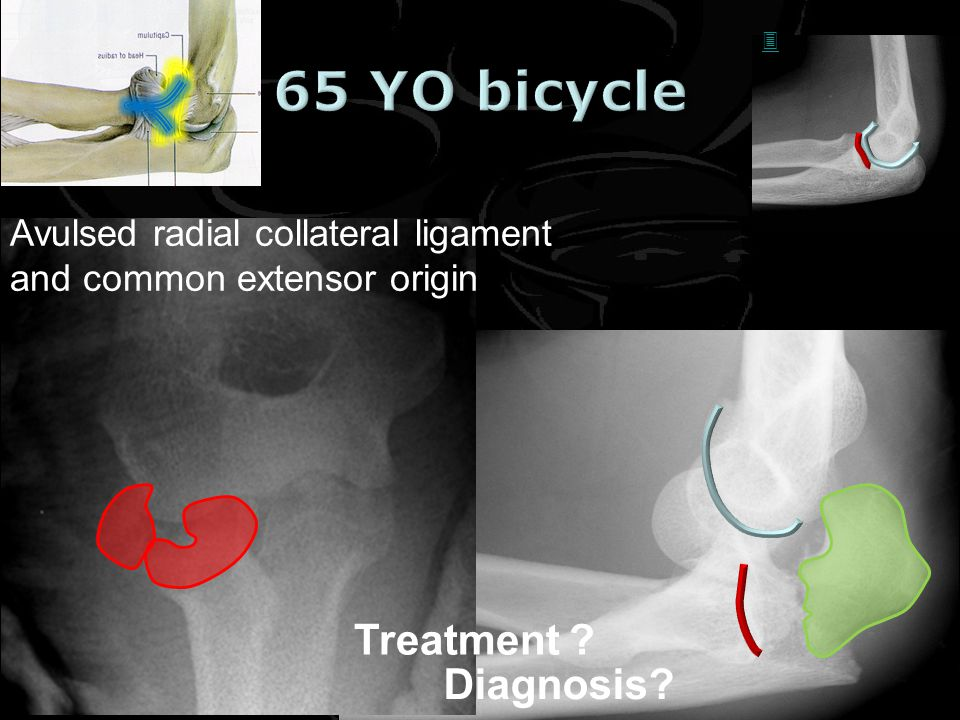 65 YO bicycle Treatment Diagnosis
