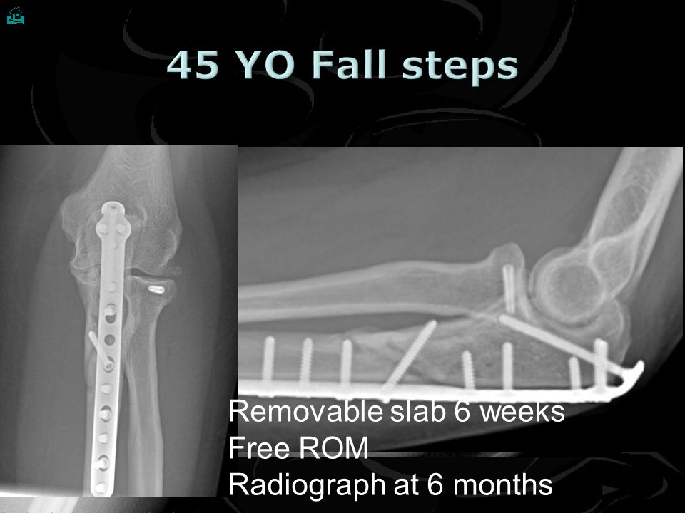 45 YO Fall steps Removable slab 6 weeks Free ROM