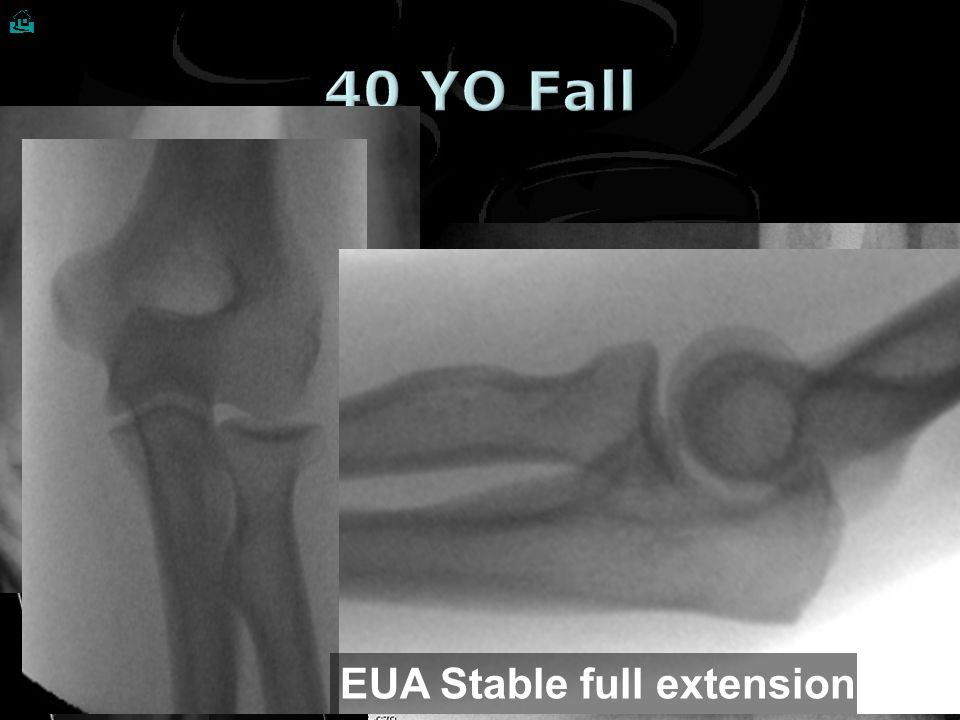  40 YO Fall Post Reduction EUA Stable full extension What do you see