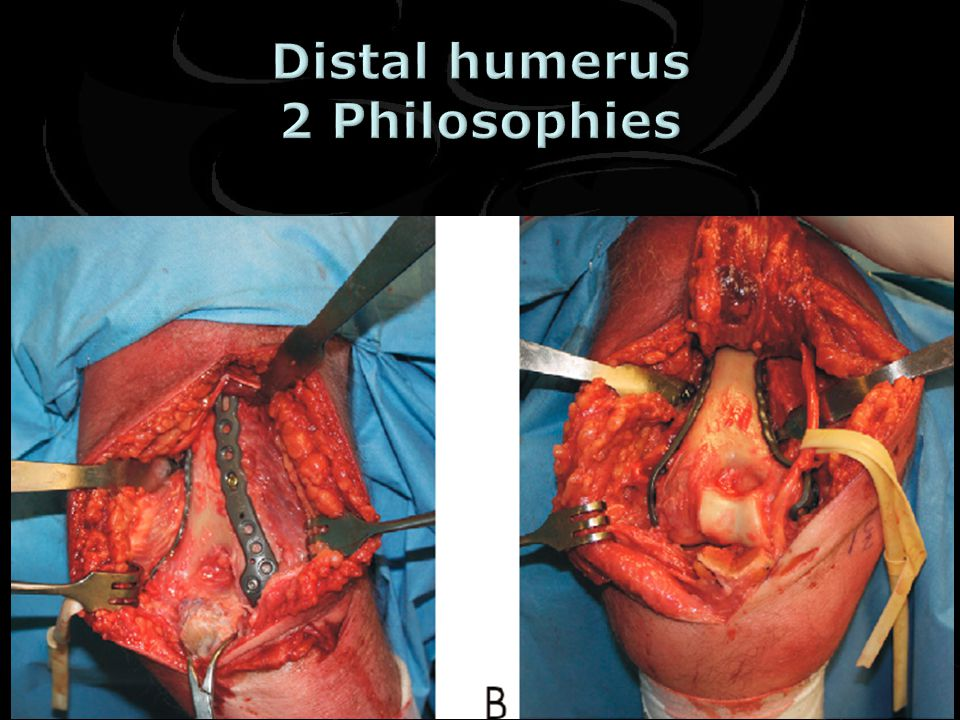 Distal humerus 2 Philosophies