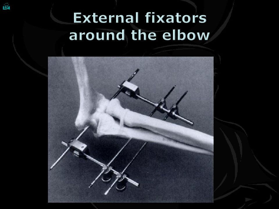 External fixators around the elbow
