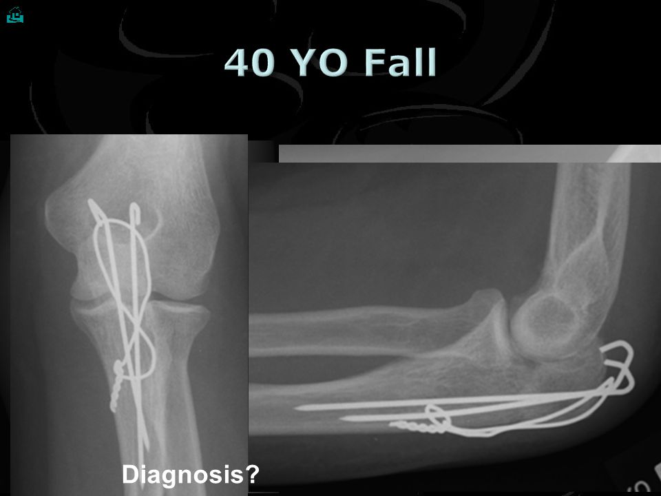  40 YO Fall Diagnosis Treatment