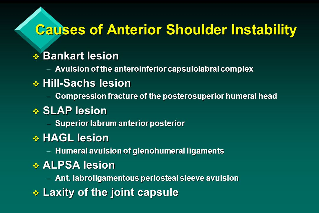 Causes of Anterior Shoulder Instability