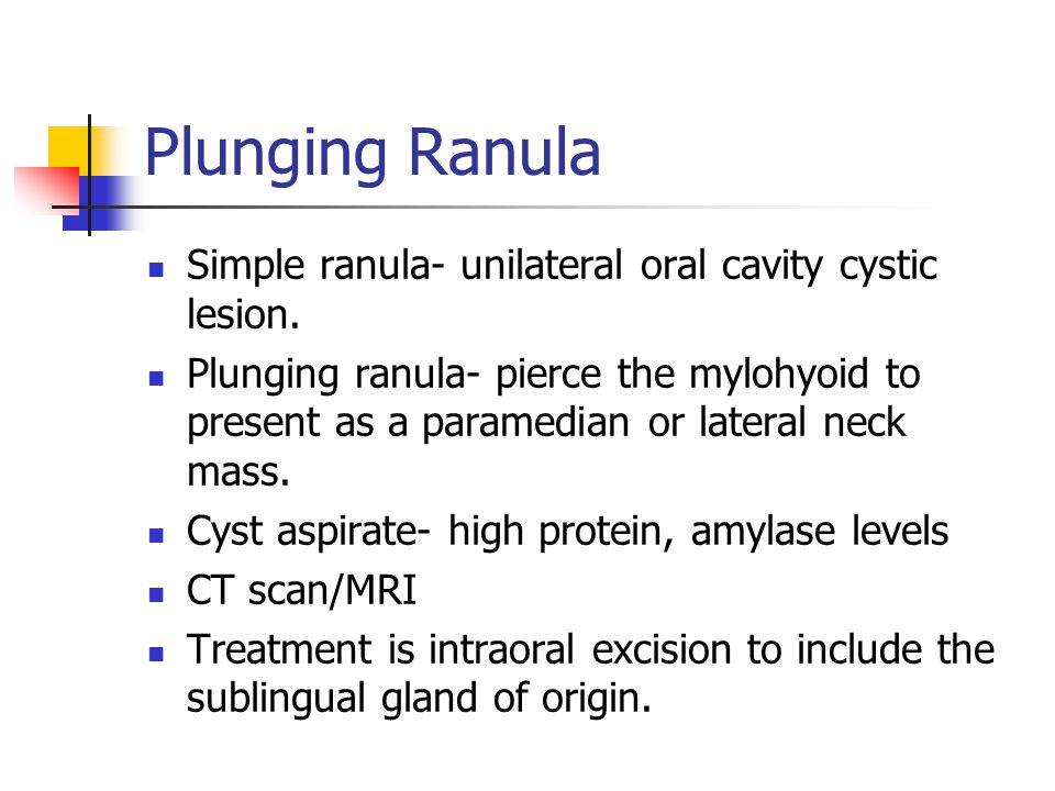 Plunging Ranula Simple ranula- unilateral oral cavity cystic lesion.