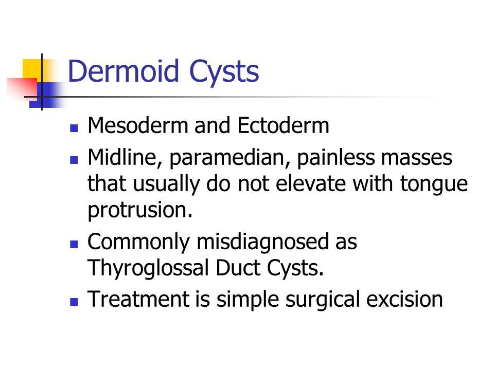 Dermoid Cysts Mesoderm and Ectoderm